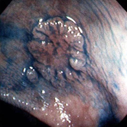 Все отделы толстой кишки располагаются в брюшной полости и в районе малого таза.  Длина органа составляет 1 - 1...